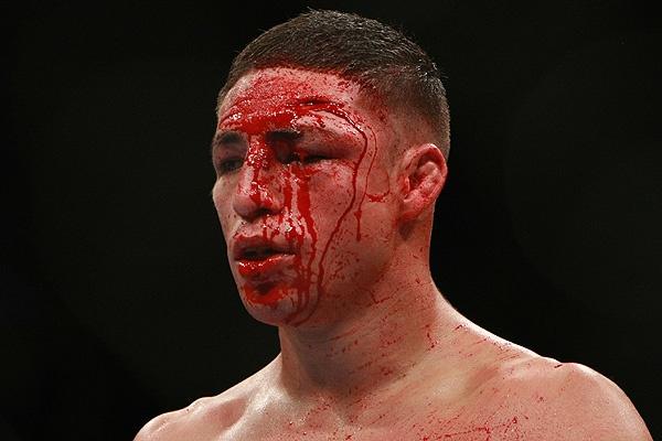 Diego Sanchez blames UFC 171 loss on food poisoning