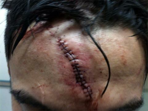 Miguel Torres surgery *VIDEO*