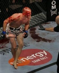 lytle-vs-koscheck-ufc-blood_display_image