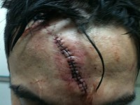 miguel_torres_cut_after