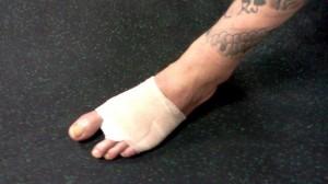 neil melanson - nine toes
