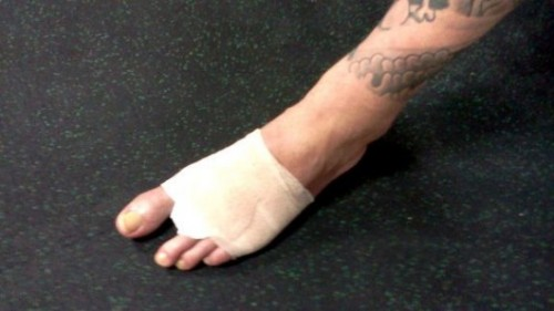Photo of the day: Xtreme Couture grappling coach Neil Melanson cuts his toe off for love