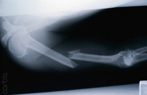 X-ray of a Badly Broken Arm