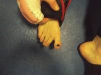 vidonic toe