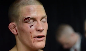 Erik Koch - UFC on Fox 6
