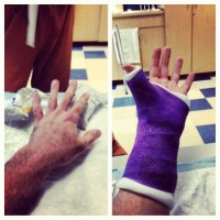 varner-injury-hand