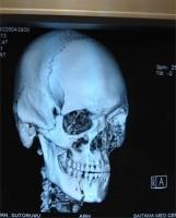 Stefan Struve, broken jaw