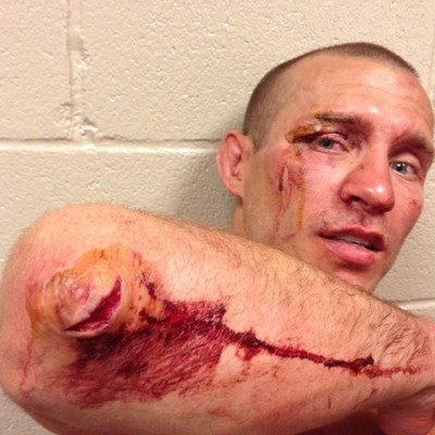 Cerrone Elbow