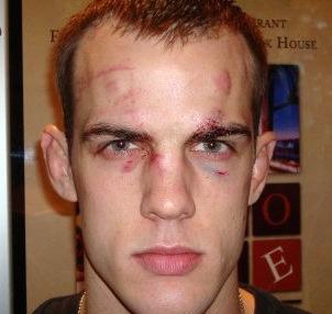 Cole Miller blasts Conor McGregor's win over Diego Brandao