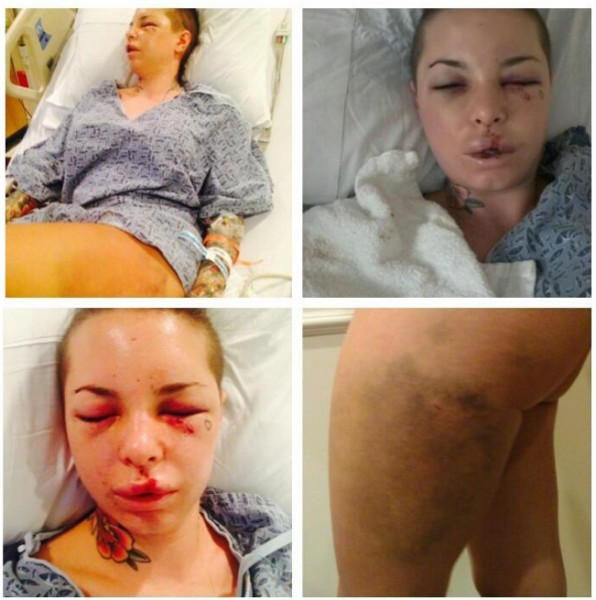 christy mack beaten
