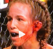leslie smith cauliflower ear