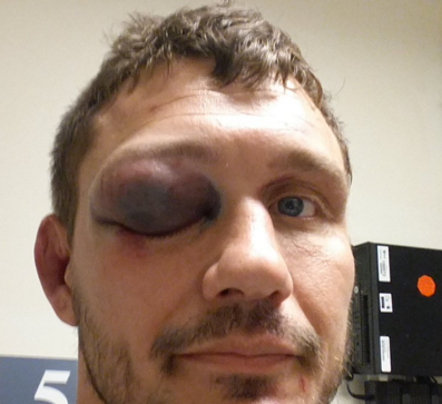 mitrione eye injury_twitter